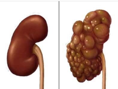 steroids treatment liver failure